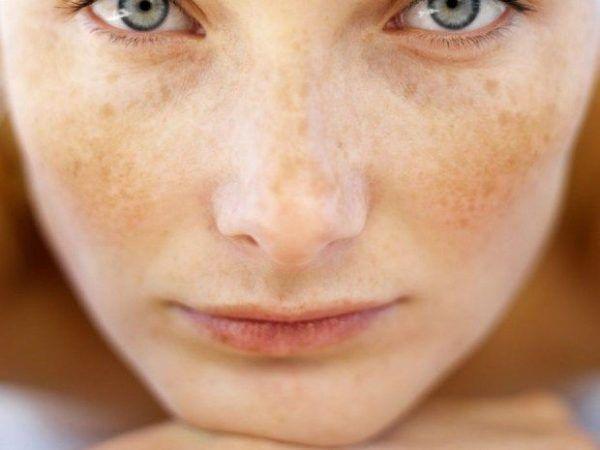 vitiligo-tratamiento-hiperpigmentacion