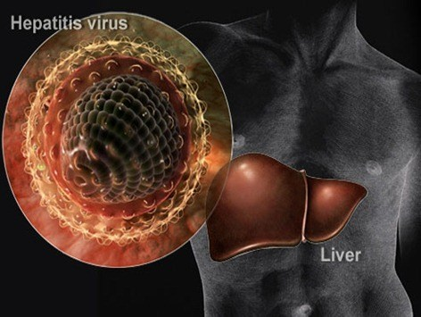 webmd_rm_photo_of_hepatitis_virus_collage